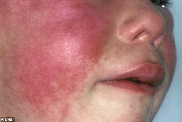 UK Scarlet Fever Outbreak Is Highest In 50 Years 2